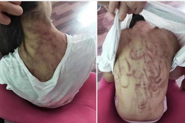 12岁女童被虐打全身多处瘀青 继母被刑拘