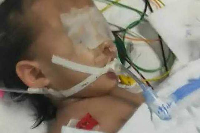 1岁女童疑遭母亲男友虐待全身是伤 救活率为零