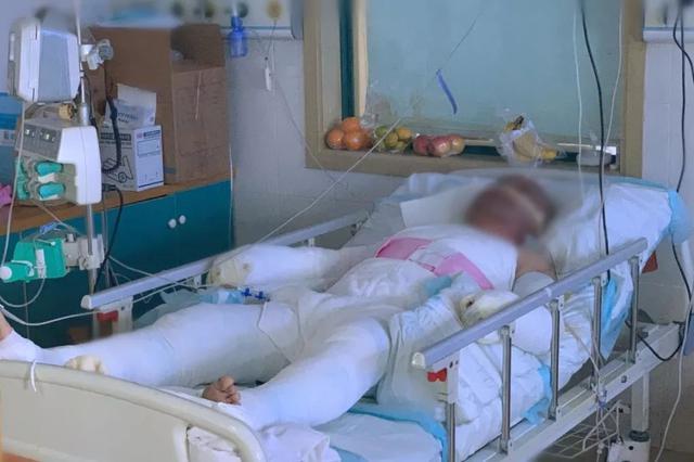 女子自杀点煤气爆燃 警察为保护市民全身60%烧伤