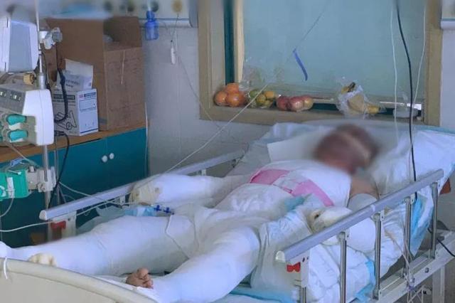 女子自杀点煤气爆燃 警员为保护群众全身60%烧伤
