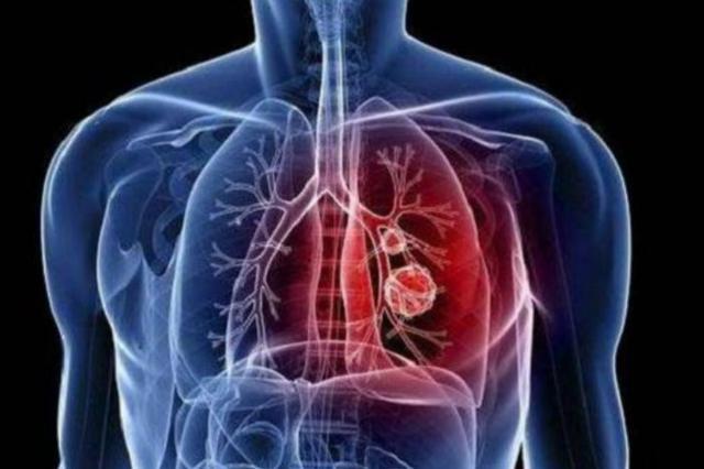 柳叶刀披露首例新冠肺炎患者发病日期,较官方通报早7天