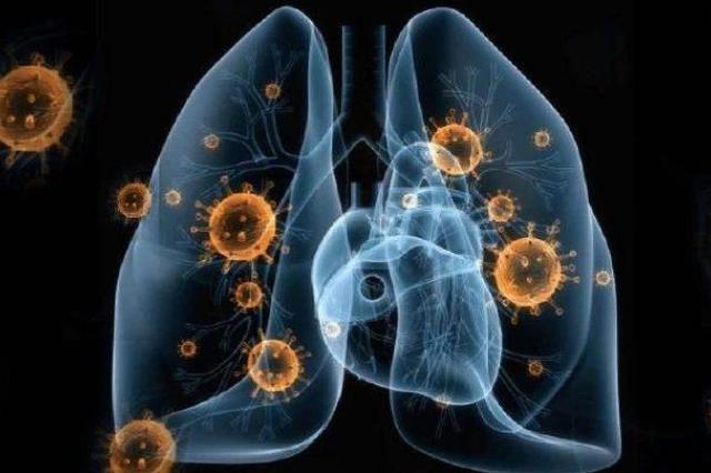 日本新增20例新冠肺炎确诊病例,累计确诊763例