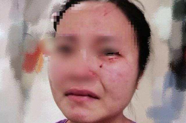 广州被外籍新冠患者咬伤护士 曾遭撕扯防护服