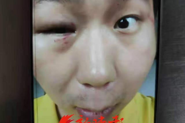 """公务员举报""""被上司殴打致残"""" 义乌已再次开展调查"""