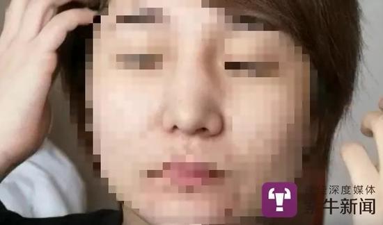 郭琦的鼻子不对称