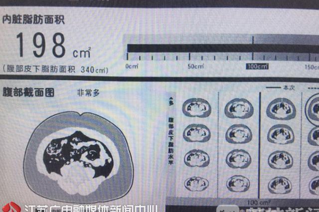 慢性病成江苏居民死亡最大杀手 我省出台防治规划