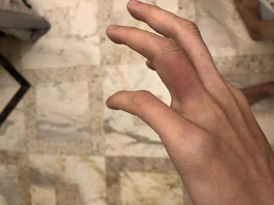 周美毅手指受伤