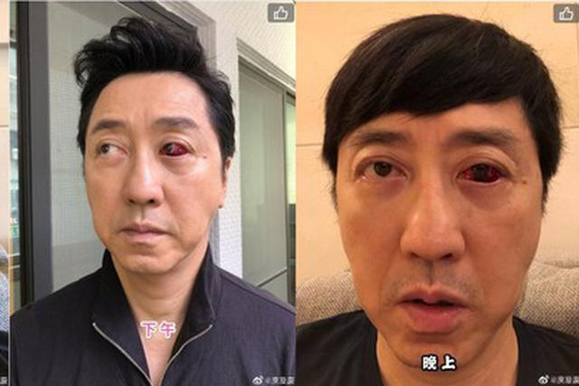 庾澄庆曝眼球布满血块原因:血管老化 已三度复发