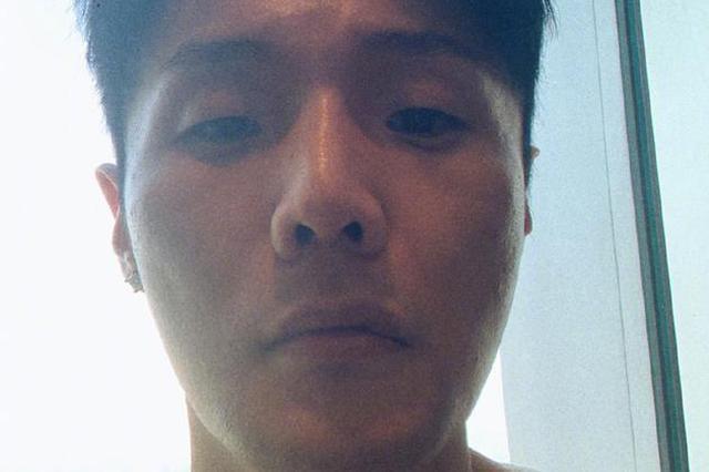 李荣浩解释嘴上异状凸起:十几年前车祸留疤所致
