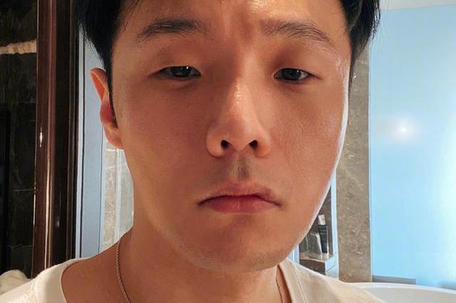 李荣浩自曝伤到腿要坐轮椅 网友:被才华压倒了?