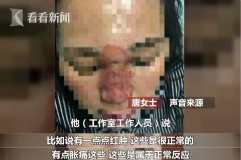女子花1800元注射玻尿酸隆鼻 致皮肤坏死险失明