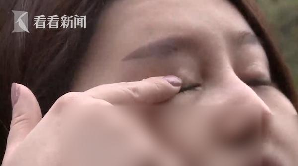 女子割双眼皮后眼睛漏光发炎 院方:可能熬夜造成