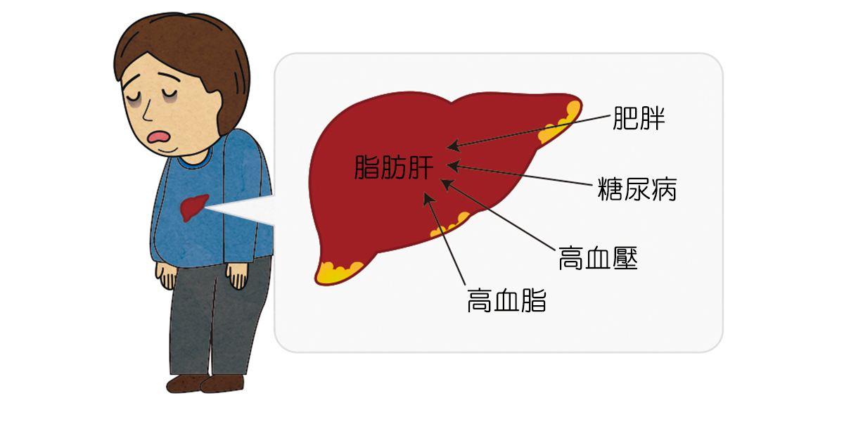 脂肪肝的六个认识误区 你中招了几个?