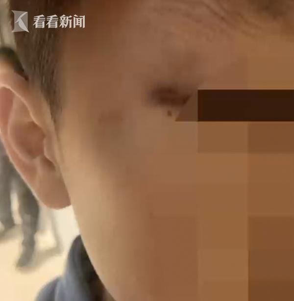 7岁男童因摸女老师胸部遭殴打 涉事教师已被处罚