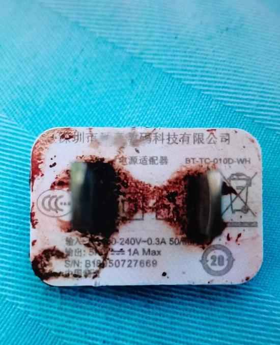 手机充电器爆炸!男子眼睛被炸伤!这个习惯你有吗?