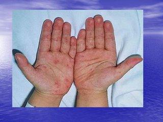 江西7月传染病疫情 手足口在丙类传染病中居首位