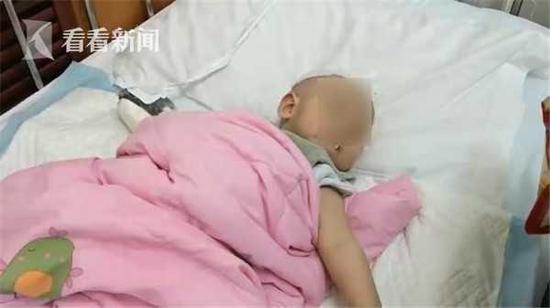 9个月大男婴掉进开水锅 大面积烧伤部分右手截肢