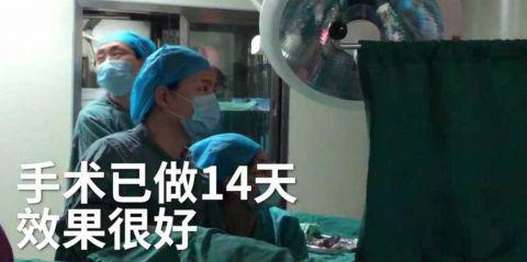 """医生表示:""""手术非常成功,现在术后已经14天了,效果非常的好""""。"""