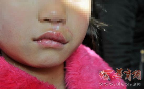 7岁女童刚进校门被村支书的狗咬穿嘴唇 缝十多针
