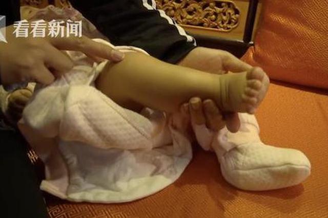 四个月婴儿中医馆做推拿 全身青紫家长索要赔偿