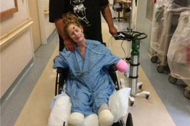 感冒引发败血症 女子婚礼前夕手脚坏死惨遭截肢