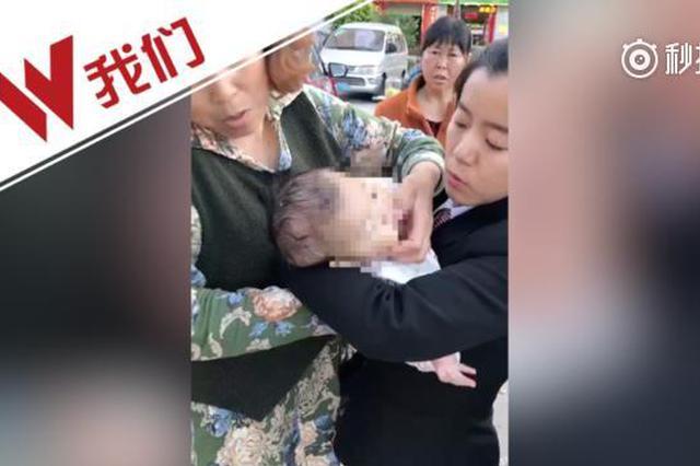 女婴遭苹果砸成重伤 警方逐户排查DNA确定抛物人