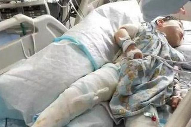 4岁男孩一屁股坐进开水桶 全身65%以上大面积烫伤