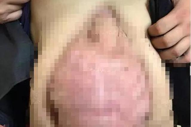 男子身材像孕妇还裹腹带 露出肚子时医生惊了