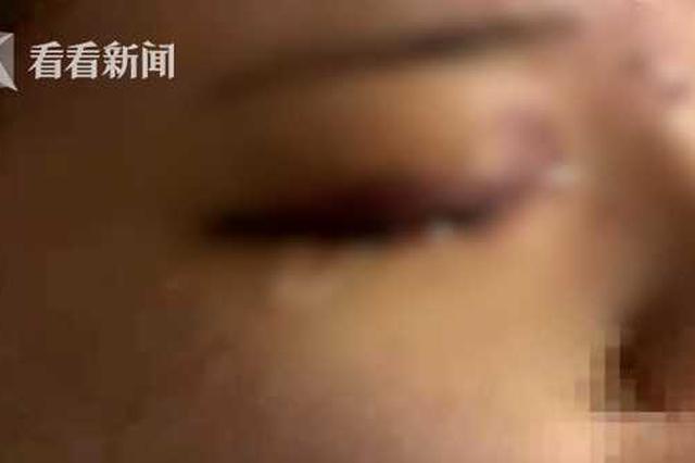 19歲女孩愛美打了玻尿酸 一針下去眼睛卻失明了