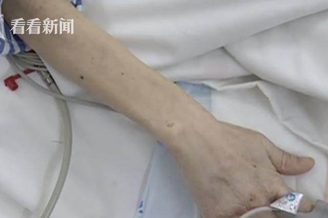 61岁阿姨肚内长36斤肿瘤 全因11年前留下的祸根