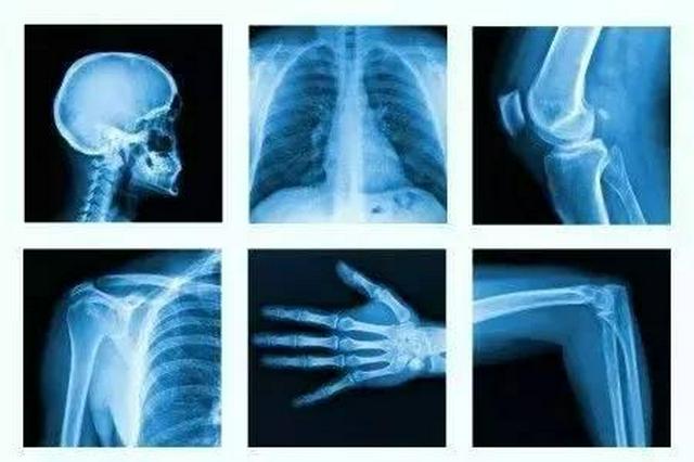 骨科创伤类医用耗材平均降价近九成