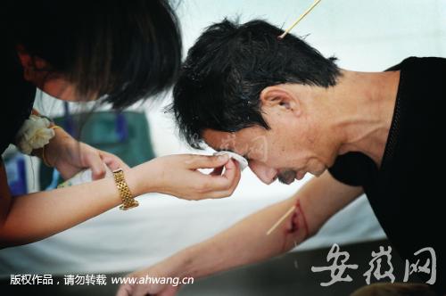 昨天中午,王先生在医院清理被藏獒咬出的伤口。