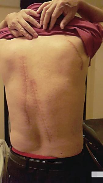 李耀清后背长长的刀伤触目惊心。图片来自网络