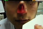 切割机回弹 男子被削半个鼻子