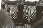 男子医院做无痛胃镜 醒来五根肋骨骨折