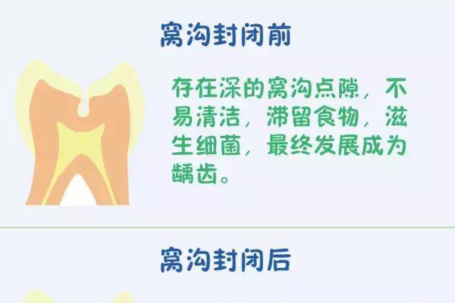 沈阳:小学二年级学生免费做窝沟封闭