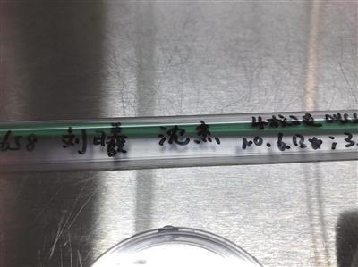2016年12月,南京市鼓楼医院里用于转移受精胚胎的导管。