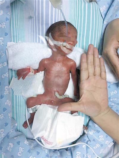 """""""七哥""""出生时,那迷你身躯只比医务人员的手掌长一些,最小尺寸的纸尿裤穿在他身上就像一条无比蓬松的被子,只有两只小脚丫能稍微露出一点。(受访者提供)"""