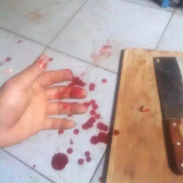 恐怖!桂林一男子天天在家拿刀自残 还打开了煤气罐