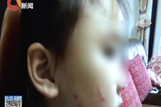 女儿幼儿园打架受伤 年轻父母暴打对方外婆