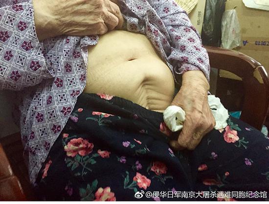 中国94岁老人控诉日军暴行 强烈要求把经历公诸于世秦炎仕