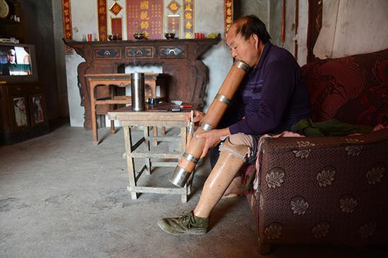 陈正方左腿在触雷后截肢,他坐在自家沙发上抽烟,他先后触雷三次被炸。
