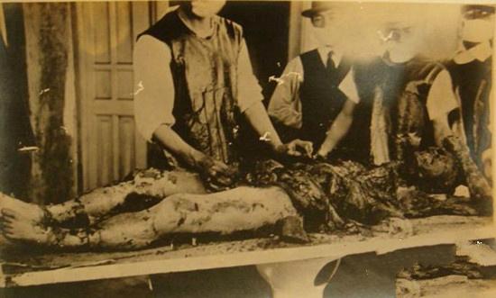 日军731部队人体实验恐怖照