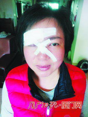 受伤的叶女士。