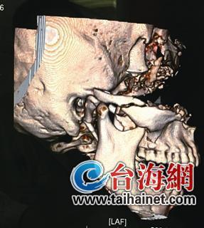 ▲患者受伤颅部的三维成像