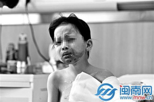 女孩被炸开的暖宝宝烫伤,仍在医院治疗