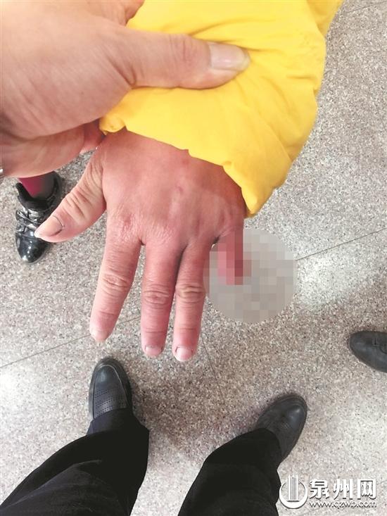 小春左手小指有残缺