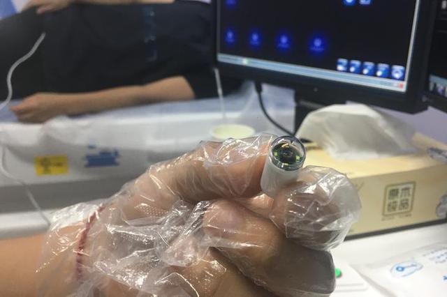 宁波现新胃镜方式 吞下一颗胶囊后医生遥控检查
