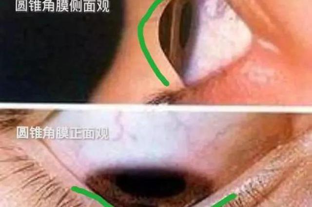 杭州父子俩吓了一跳 18岁儿子查视力居然眼球鼓成包