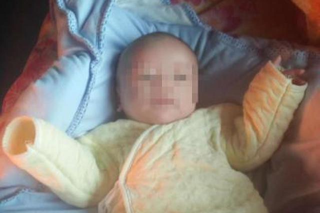 宁波1宝宝出生竟是大象腿 青紫肿块与大腿一样粗